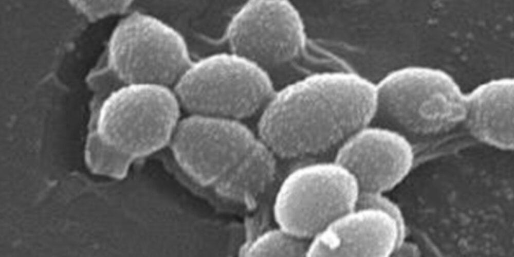 乳酸菌がたっぷり150億個
